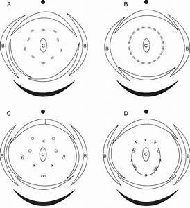 Floral Diagrams For Four Apetalous Species  A  Hardwickia