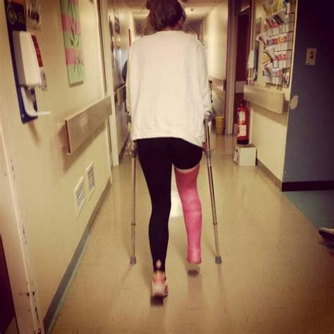 Leg Castllc Cast Slcllc Cast Pinterest Leg Cast