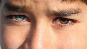 How rare is heterochromia in humans? | Reference.com
