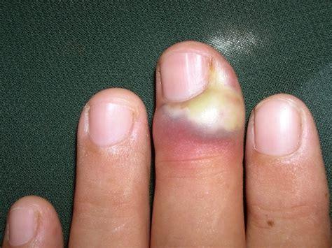 paronychia treatment pictures symptoms