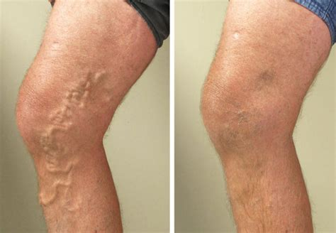 Varicose Vein Treatments Are Available  Morris Jagodowicz. Average Electricity Usage Web Designer Tools. Child Custody Lawyers In Fresno Ca. Dumpster Rental West Chester Pa. Dust Explosion Pentagon High Yield Muni Bonds. High Speed Internet Atlanta Ga. Medicare Rules For Physical Therapy. Corpus Christi Foundation Repair. Chiropractors In Alpharetta Ga