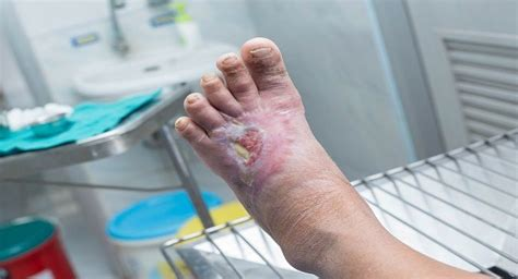 arm  feet naturally  fight diabetic ulcers