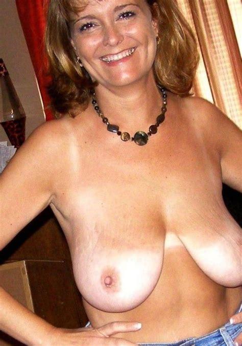 Mature Women Breast Reduction Xxx Pics Fun Hot Pic