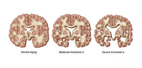 alzheimers brain deterioration photograph by gwen shockey