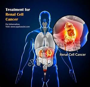 Renal Cell Cancer: Treatment, Complications, Prognosis