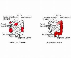 Inflammatory Bowel Disease  U2013 Ooigastro