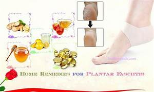 21 Best Easy Home Remedies For Plantar Fasciitis Pain And