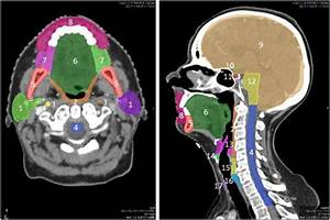 Axial  Left  And Sagittal  Right  View Of The Consensus