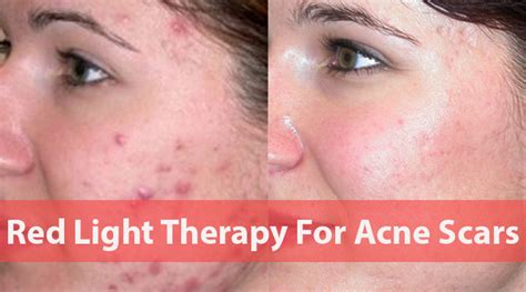 acne light therapy light therapy for acne scars