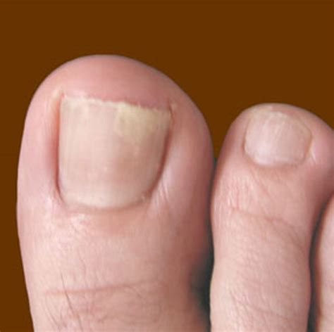 Toenail Fungus  Pictures, Symptoms, Treatment, Home Remedies. Soft Grunge Signs. Heathers Signs. Mindfulness Signs. Barber Shop Signs. Engine Signs. Catering Signs. Hibiscus Signs. Copper Signs