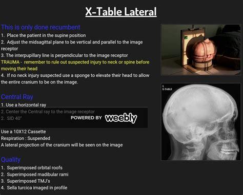 Townes Skull X Ray Anatomy