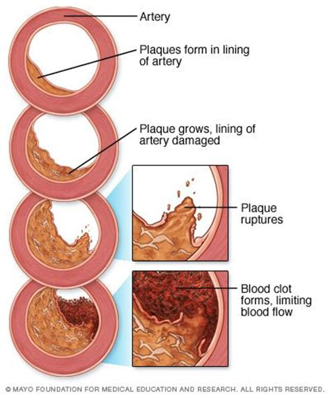 niaspan   supplement  plaque reversal scary symptoms