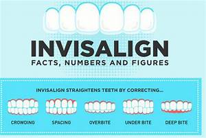 Invisalign  Facts  U0026 Numbers  Infographic