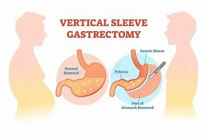 Anatomy Of Stomach Cut Section Stock Illustration