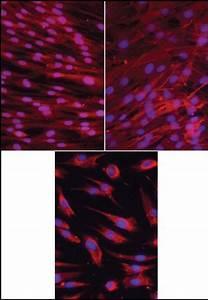 Immunofluorescence Staining Of Badscs   U00d7200   Cd105   Left