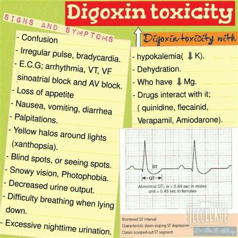 Digoxin Toxicity ; Some Plants Such As Oleander Or Lily Of. Litigation Support Companies. Pediatric Dentist Orange Park Fl. Steel Racks For Storage Usa Free Phone Number. Encino Divorce Attorney Service Business List. Military Car Loans With Bad Credit. Fifth Third Credit Card Processing. Insurance Lead Company Reviews. Who To Call For Identity Theft