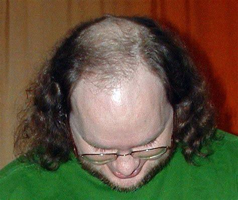 Barber Advice On Male Pattern Baldness - Sharpologist