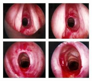 Tracheobronchial Amyloidosis In A 55