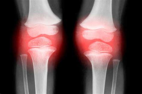 bone arthritis osteoarthritis lead treatment works knee therapies antioxidant might ray soon could