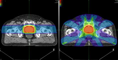prostate cancer beam treatment proton therapy pencil scanning