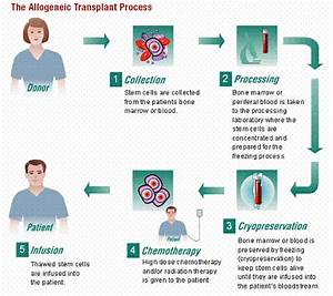 Musings of a Med Student Patient: Bone Marrow Transplants ...