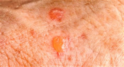 psoriasis  skin cancer   signs