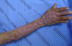 Sporotrichosis = داء الشعريات المبوغة Sporotrichosis
