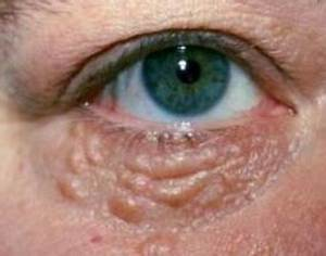 Bumps under Eyes: Red, White, Dots, Small, Pimples, Eyelid ...