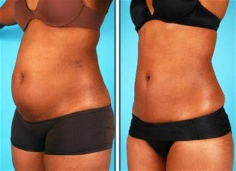 How Much Does Liposuction Cost?. Volkswagen Dealership Pittsburgh. How To Drive A Car In Usa Auto Huur Schiphol. Social Security Payday Loans. Cost Of Dental Implants Vs Dentures. Bank Account Opening Requirements. Free Online Bookkeeping For Small Business. Self Employed Retirement Pratt Interior Design. Free Money Pay Off Student Loans