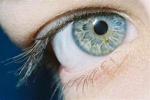 Jalene, U0026, 39, S, Beautiful, Heterochromic, Eyes