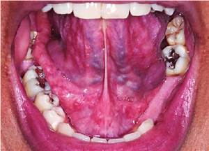 Normal Floor Of Mouth