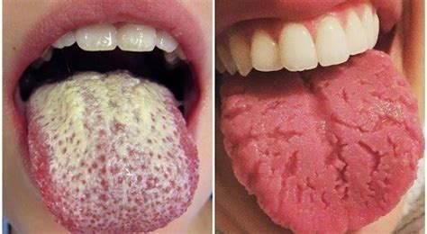 10 Warning Signs Your Tongue May Be Sending About Your