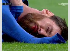 Lionel Messi Barcelona ace bloodied by Marcelo's elbow