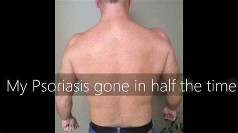light therapy for psoriasis uvb narrowband l home phototherapy treatment for