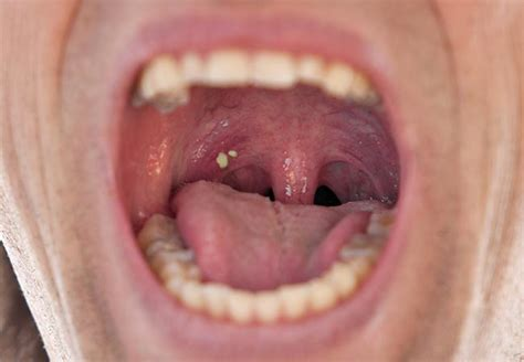 Are Troublesome Tonsil Stones Causing Your Bad Breath?