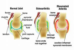 ra joint damage
