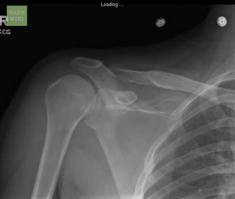 shoulder dislocation anterior ray reduction findings wikidoc shown below