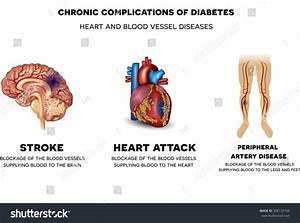 Chronic Complications Diabetes Heart Blood Vessel Stock