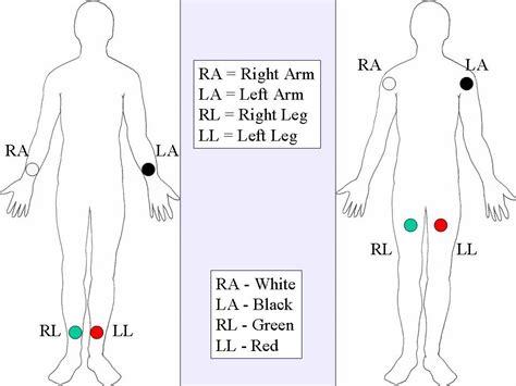 12 Lead Ecg Lead Placement Diagrams Nursing Study Tips