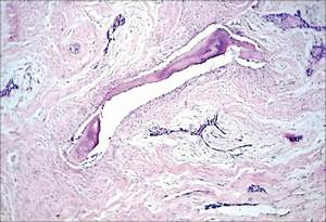 Hybrid desmoplastic ameloblastoma: A case report of rare ...