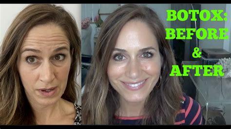 botox    video youtube