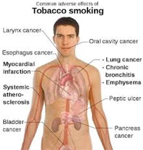 Presentation On Bad Effects Of Smoking Assignment Point
