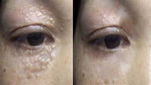 Milia Treatment - 3 Weeks To Remove Milia and White Bumps ...