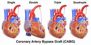 Number of arteries bypassed Coronary Artery Bypass Graft