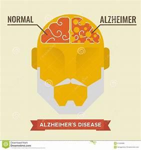 Alzheimer Stock Vector - Image: 57425939