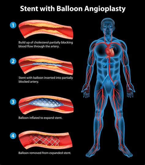 Treating Stable Angina With Angioplasty And Stenting