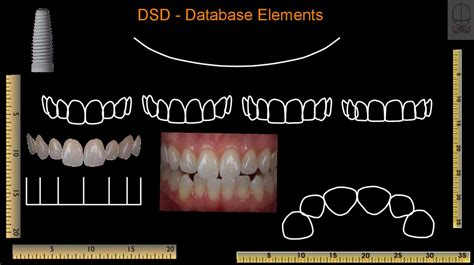 dsd digital smile design prezentatsiya onlayn