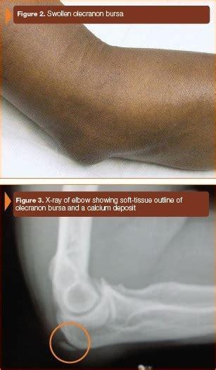 olecranon bursitis treatment brooklyn  york nyc