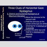 horizontal-nystagmus