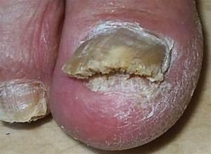 Грибок ногтей на руках и на ногах